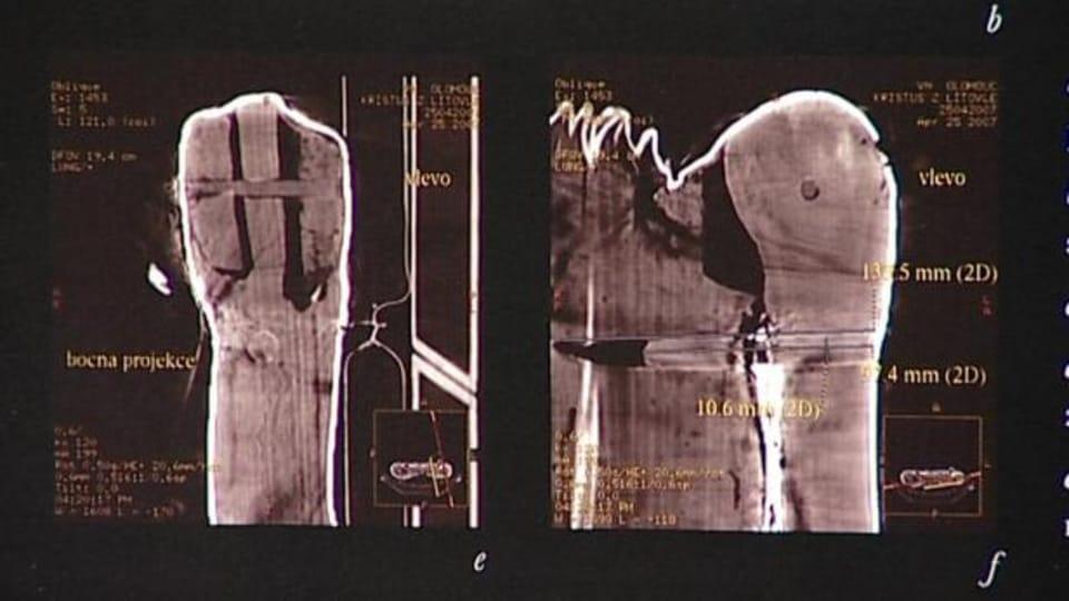 Auf Bildern eines Computertomographen waren allerdings bewegliche Schultergelenke unter den Stoffbandagen zu sehen  (Foto: ČT 24)
